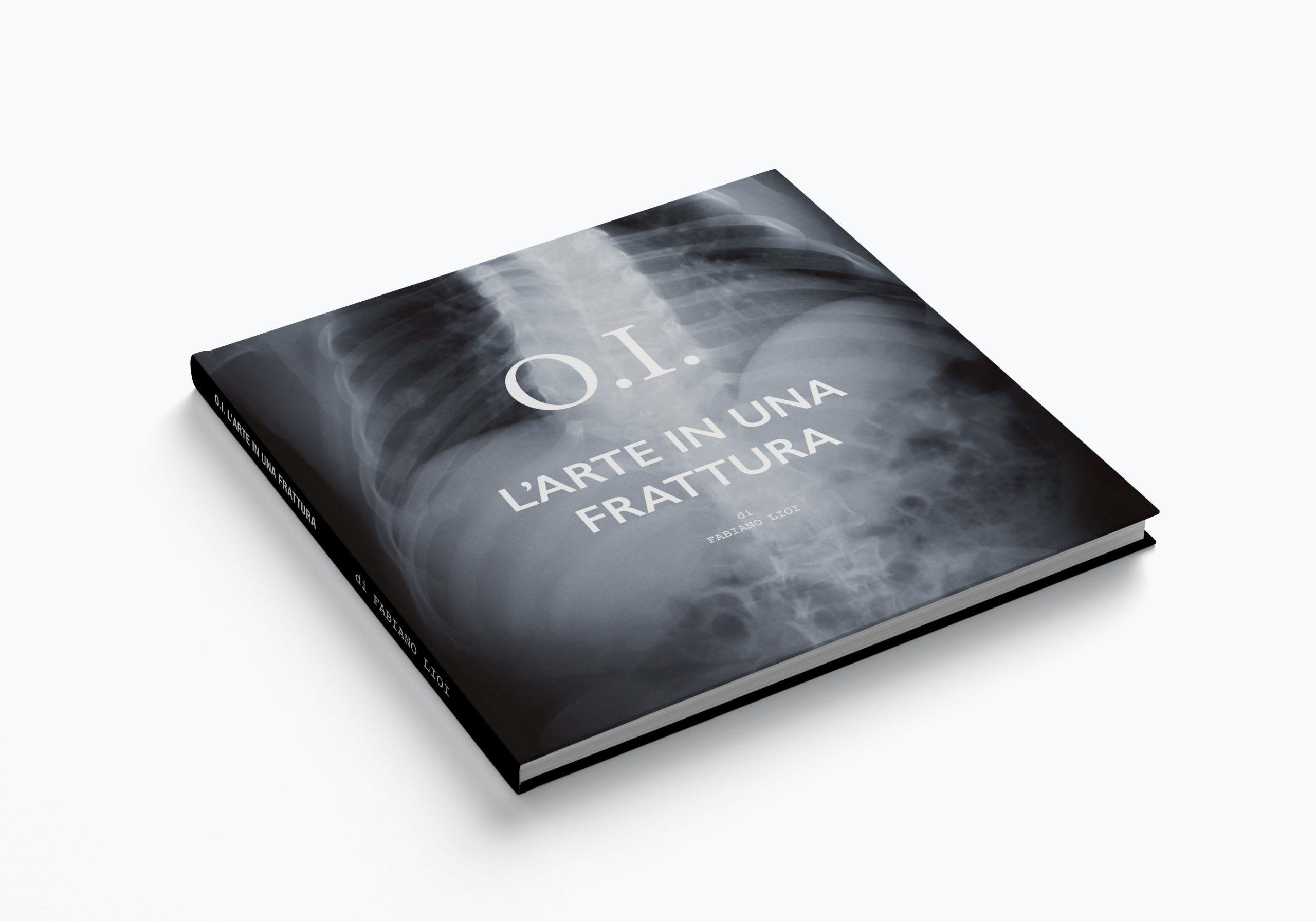 O.I. L'arte in una frattura: la copertina del libro sull'osteogenesi imperfetta